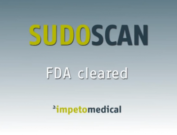 Sudoscan demonstration video