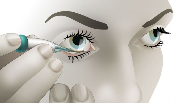 Contrôle de la glycémie par surveillance lacrymale : c'est pour quand ?